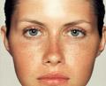 .•:*¨`*:•. حالة وجهك... تعكس صحتك